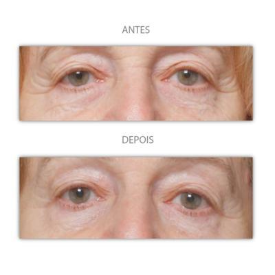 Imagem 9 do produto Máscara Anti-idade Iluminage Beauty -